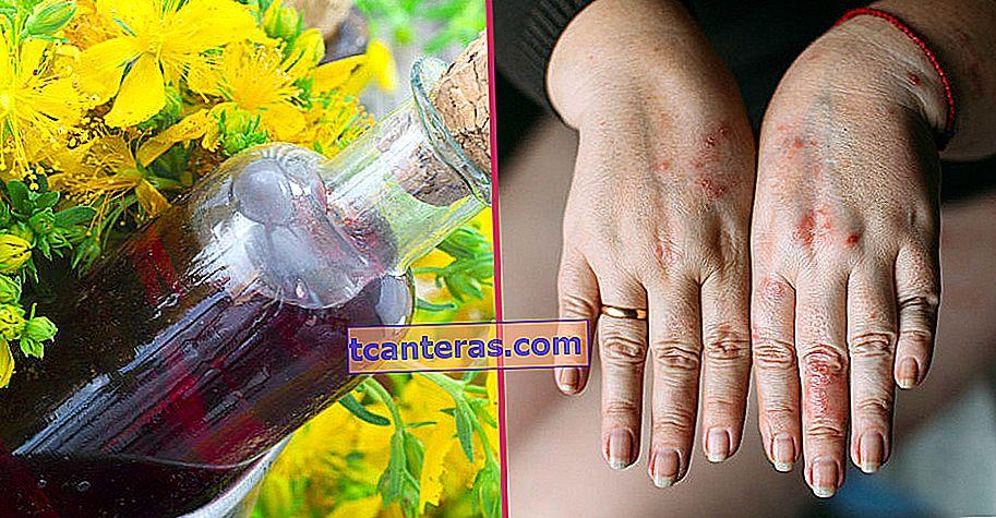 Suave para la piel y los intestinos: aceite de centauro