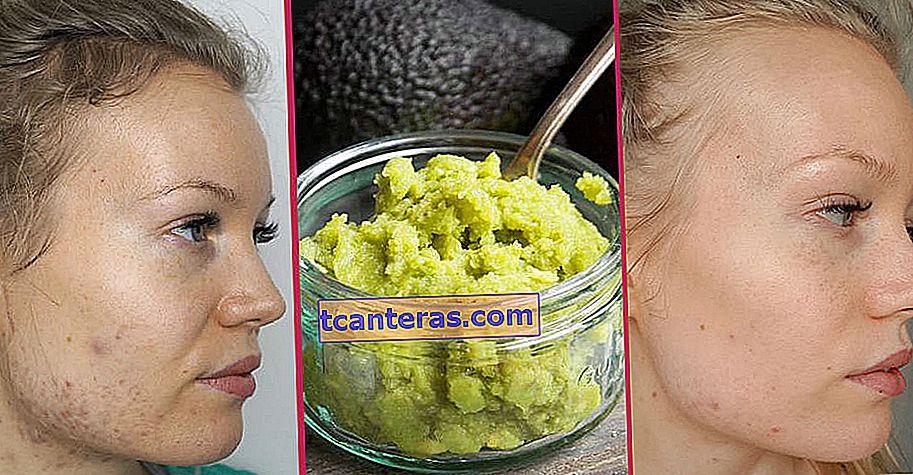 Basta con dos ingredientes simples: la mascarilla casera de aguacate anti-acné y envejecimiento